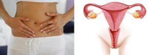 Почему после месячных болит яичник