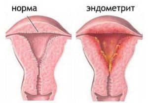 Хроническая воспалительная болезнь матки