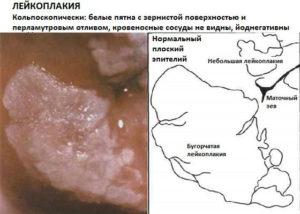 Лечение простой лейкоплакии шейки матки