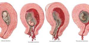 Медикаментозный аборт при замершей беременности