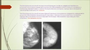 Фиброзные тяжи молочной железы что это такое