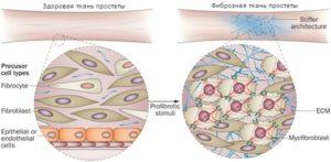 Фиброзная ткань что это такое