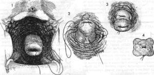 Наложение швов на шейку матки