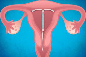 Как выглядит спираль против беременности