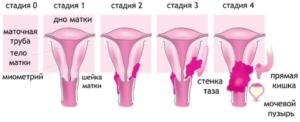 Рак шейки матки 3 стадии