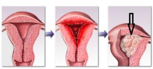 Патология эндометрия матки