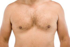 Мастит симптомы у мужчин