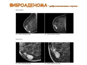 Чем киста отличается от фиброаденомы молочной железы