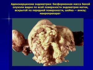 Симптомы аденокарциномы матки