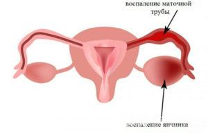 Чистка маточных труб у женщин