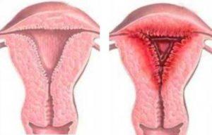 Воспалительный процесс у женщин симптомы