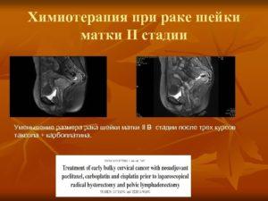 Химиотерапия при раке шейки матки