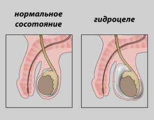 Гидроцеле справа у мужчин