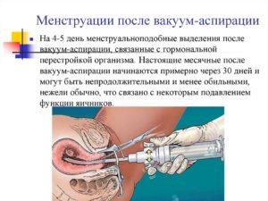Вакуум аспирация эндометрия что это такое