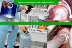 Как делают электрокоагуляцию при эрозии шейки матки