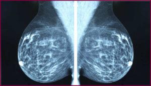 Как часто можно делать маммографию