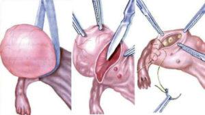 Беременность после удаления эндометриоидной кисты яичника