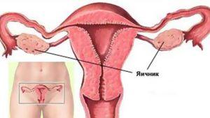 Почему во время месячных болят яичники