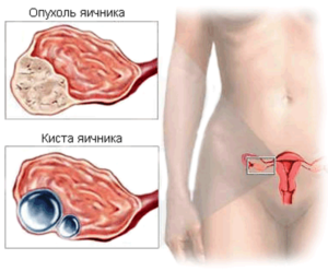 Симптомы проблем с яичниками у женщины
