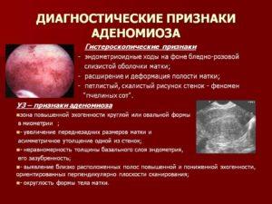 Эхопризнаки аденомиоза матки