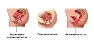 Последствия опущения матки у женщин