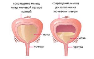 Постоянное ощущение полного мочевого пузыря у женщин