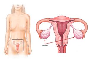 Как проверяют яичники у женщин