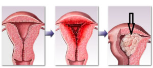 Причины утолщения эндометрия матки
