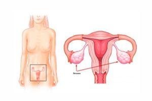 Где находятся яичники у женщин