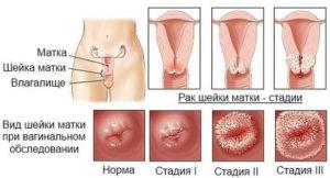 Удаление матки при раке