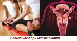 Йога при миоме матки