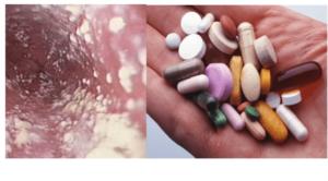 Может ли быть молочница после приема антибиотиков