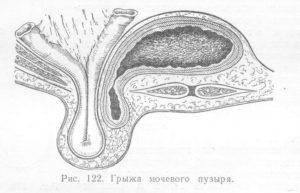 Грыжа мочевого пузыря у женщин