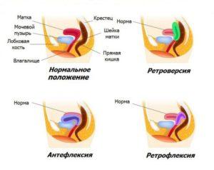 Тело матки в anteflexio что это