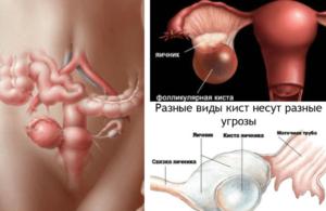 Жидкость в яичниках у женщин что это