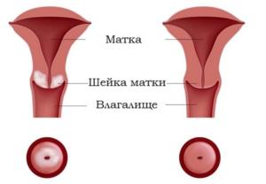 Пятна на шейке матки