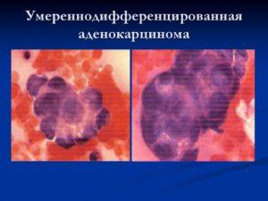 Умеренно дифференцированная аденокарцинома матки