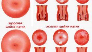 Признаки эрозии шейки матки и ее лечение