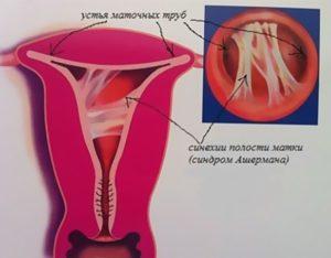 Срастание малых губ у девочек как выглядит