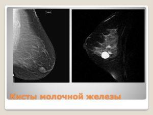 Атипичная киста молочной железы что это такое