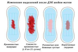 Кровянистые выделения после прижигания эрозии шейки матки