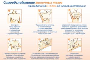Выделение из грудных желез перед месячными