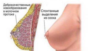 Зеленые выделения из грудных желез при надавливании