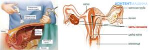 Питание после лапароскопии кисты яичника