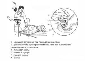 Как делать массаж матки