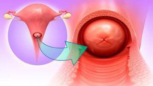 Беременность при хроническом цервиците