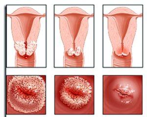 Что называют эрозией шейки матки