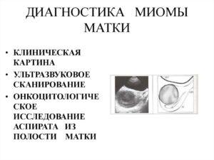 Диагностика миомы матки