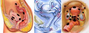 Что такое эндометриоз и чем он опасен