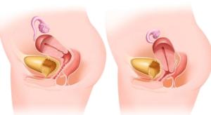 Причины опущения матки и лечение